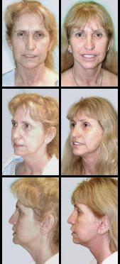 Imágenes de Antes y Después del Levantamiento Facial (Lifting)