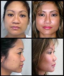 Imágenes de Antes y Después de Implantes de Mejillas y Barbilla.