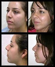 Imágenes de antes y después de la Rinoplastia
