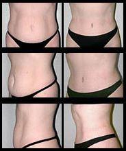 Imágenes de Antes y Después de la Abdominoplastia.