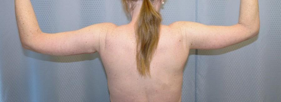 brachioplasty-arm-lift-sagging-arm-skin-claremont-upland-woman-after-back-dr-maan-kattash
