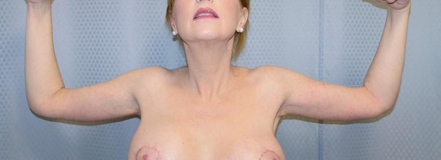 brachioplasty-arm-lift-sagging-arm-skin-claremont-upland-woman-after-front-dr-maan-kattash