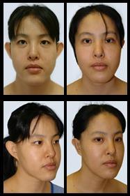 Imágenes de Antes y Después de la Cirugía de Orejas.