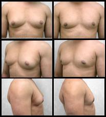 Imágenes Antes y Después de la Reducción de Senos Masculinos.