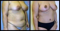 Imágenes de Antes y Después del Makeover para Mamá.