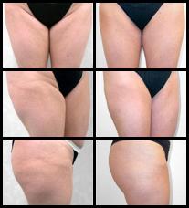 Imágenes de Antes y Después de la Liposucción.