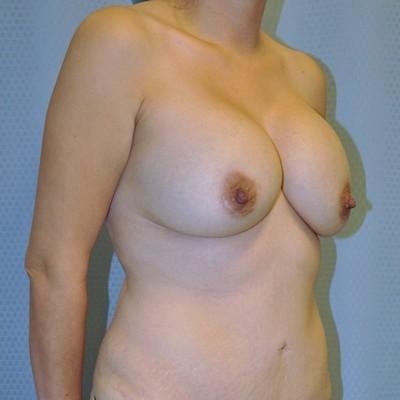 breast-revision-reconstruction-surgery-implants-los-angeles-woman-before-oblique-dr-maan-kattash
