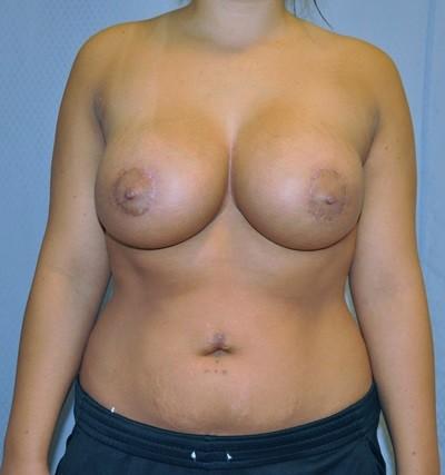 los angeles breast implants