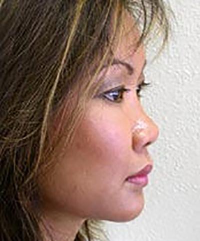 chin-augmentation-cheek-plastic-surgery-rancho-cucamonga-woman-after-side-dr-maan-kattash-2