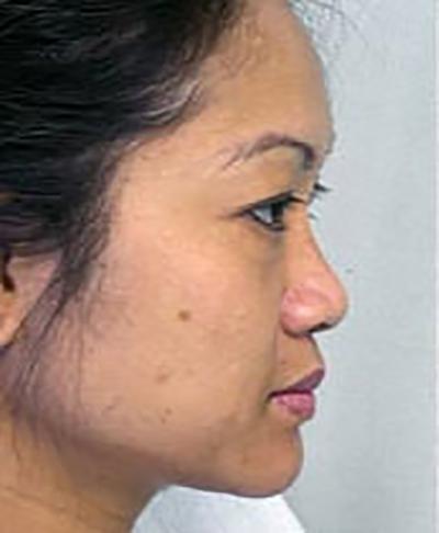 chin-augmentation-cheek-plastic-surgery-rancho-cucamonga-woman-before-side-dr-maan-kattash-2