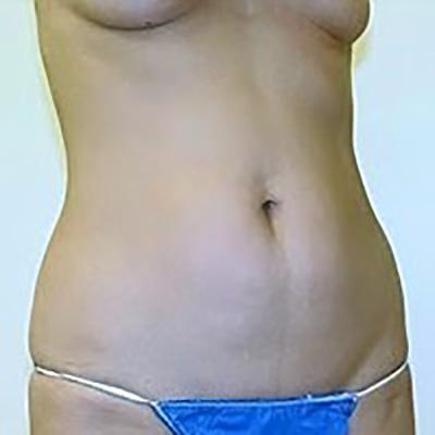 liposuction-plastic-surgery-beverly-hills-woman-before-oblique-dr-maan-kattash